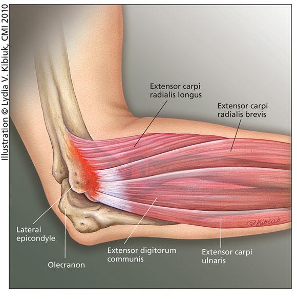 JMM_lateral_epicondylitis_tennis_elbow