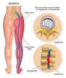 https://www.nfpt.com/wp-content/uploads/piriformis_syndrome_sciatic-nerve-256x300.jpg